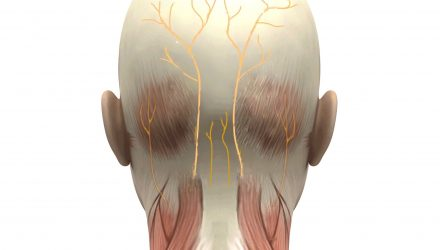Pulsed Radiofrequency (RF) Neurotomy